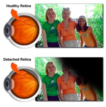 Retinal detachment treatment Malaysia